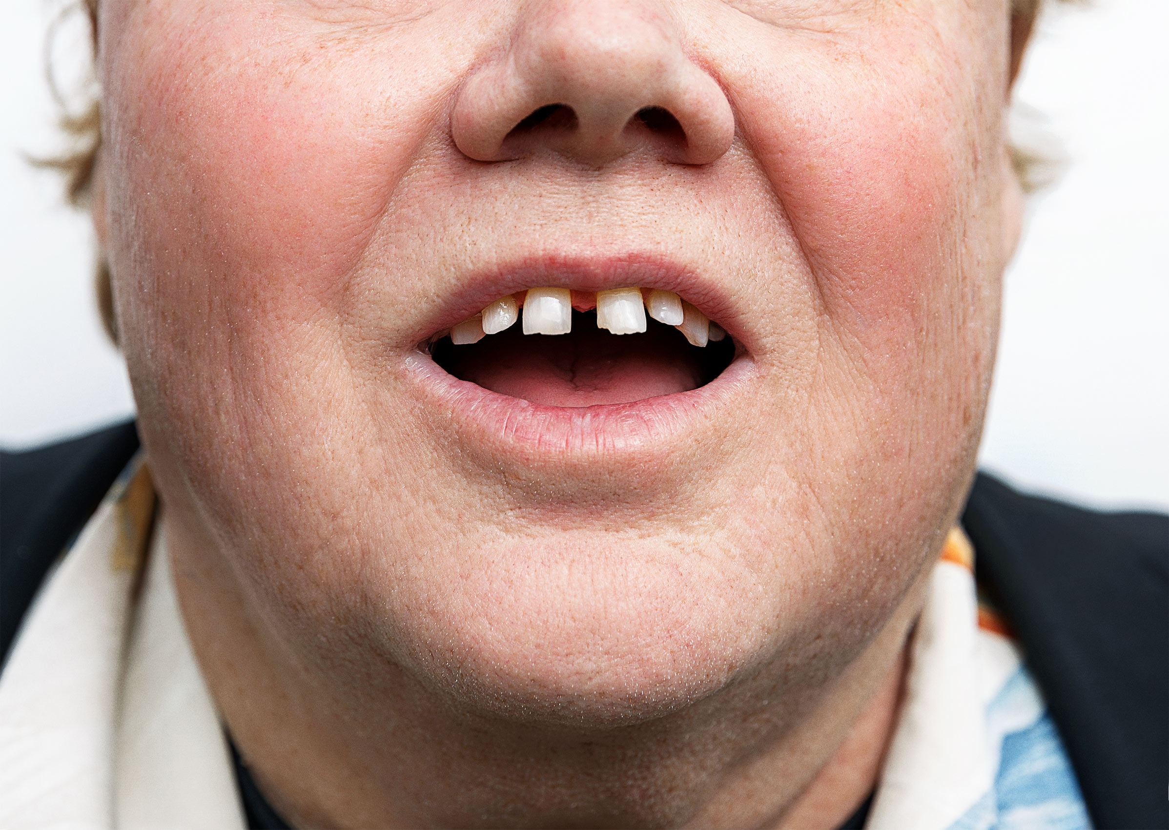 Louie_Anderson-Teeth-Corey_Nickols